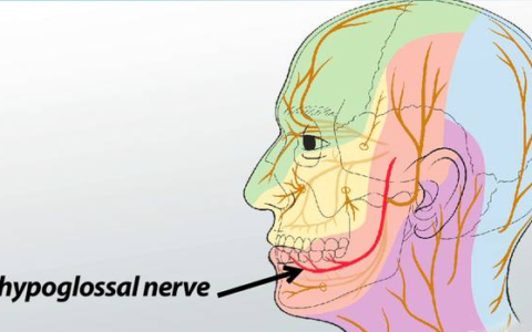 Hypoglossal Nerve Disorders